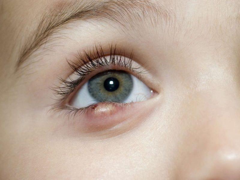 Влияние заболеваний на орган зрения