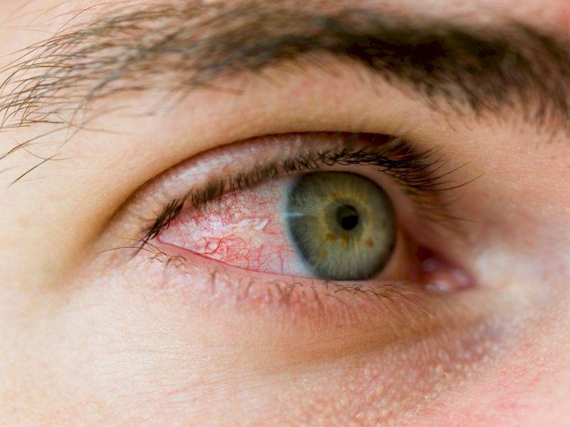 Красные глаза: в чем причина?